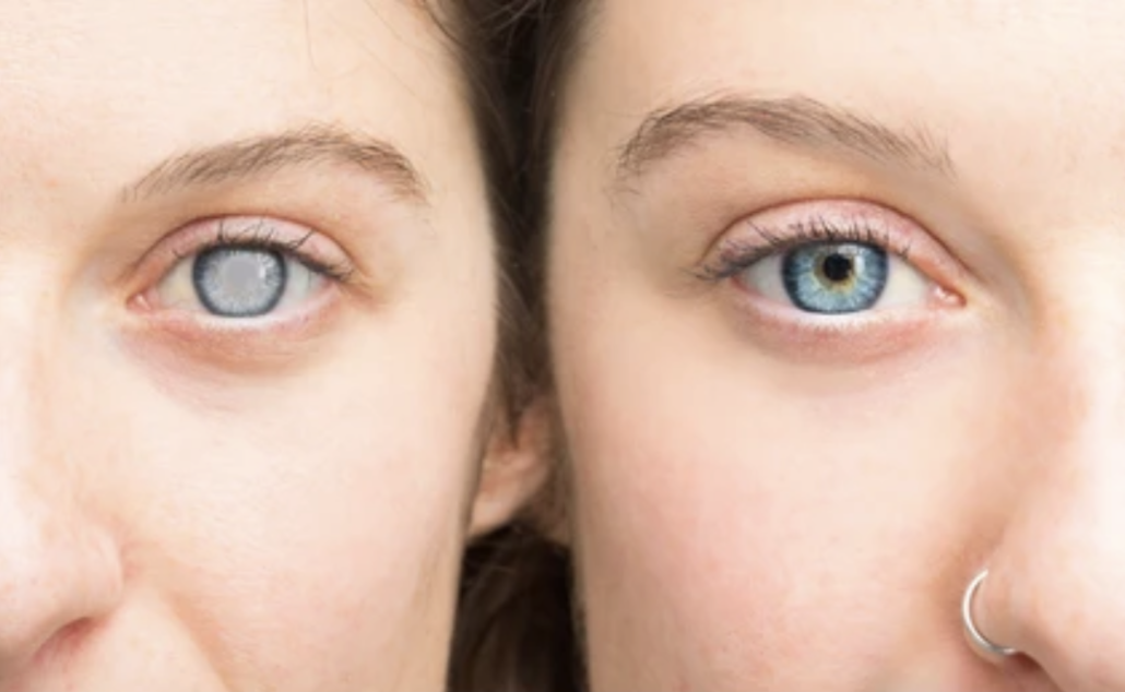 Woman showing cataracts in her eyes on the left visible by the clouded appearance, and without cataracts on the right