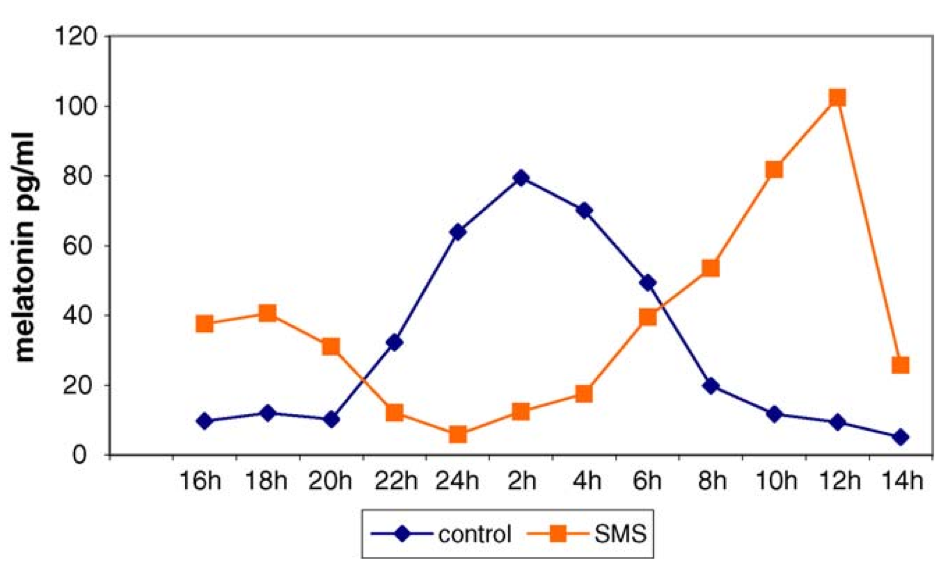 Graph showing sleep patterns in SMS