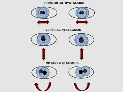 nystagmus types
